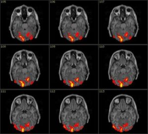 9 immagini di cervello sottoposto a risonanza magnetica mostrano diverse risposte allo stimolo bicchiere coca cola o bicchiere pepsi cola