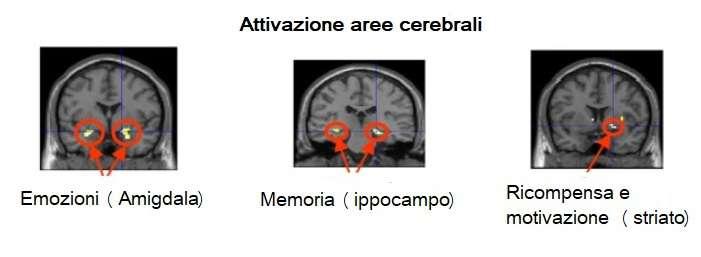 tre esempi di scansione cerebrale con fMRI: la prima mostra attivazione amigdala (emozioni), la seconda ippocampo (memoria) e la terza striato (ricompensa e motivazione)